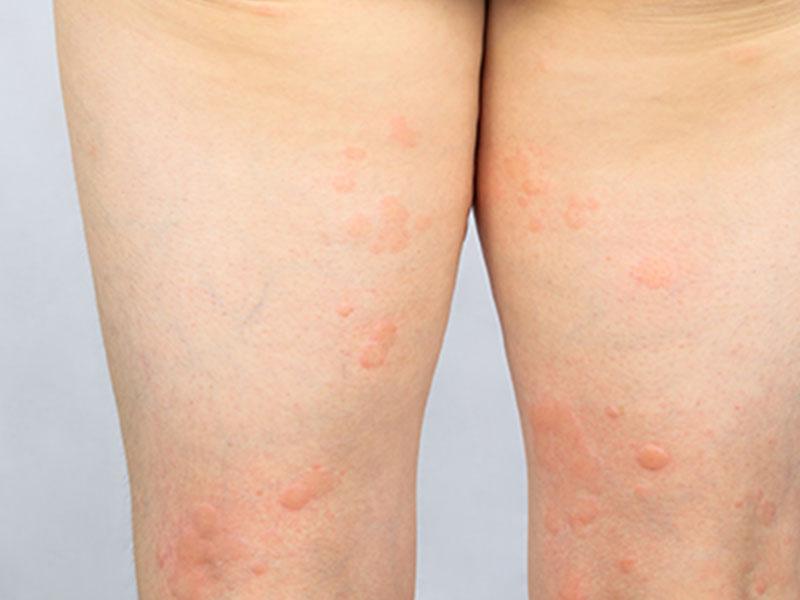 蕁麻疹(じんましん)